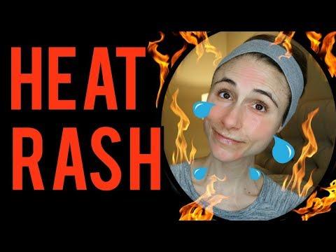 Dermatologist's tips for heat rash: Dr Dray 🔥🔥