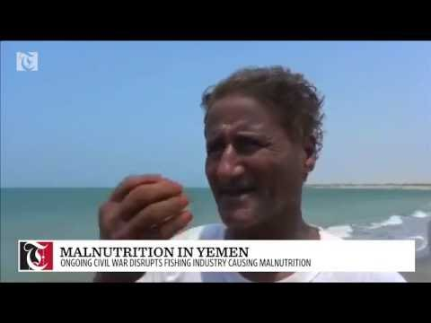 Malnutrition grows in war-ravaged Yemen