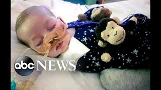 Terminally ill British infant Charlie Gard, whose parents' fight for his life drew worldwide attention, has died, according to a family spokesperson.