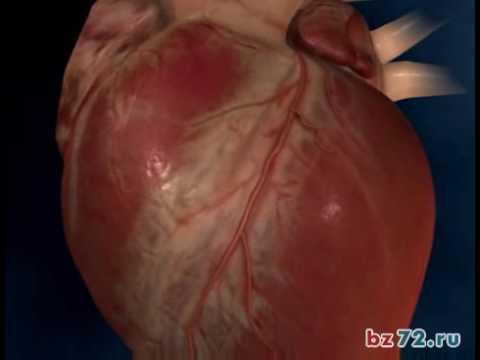 Сердечная недостаточность. Медицинская анимация