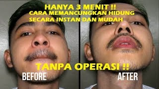 Download Video Alat Pemancung Hidung Instan Dengan Cotton Bud MP3 3GP MP4