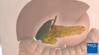 Keyhole gallbladder removal surgery