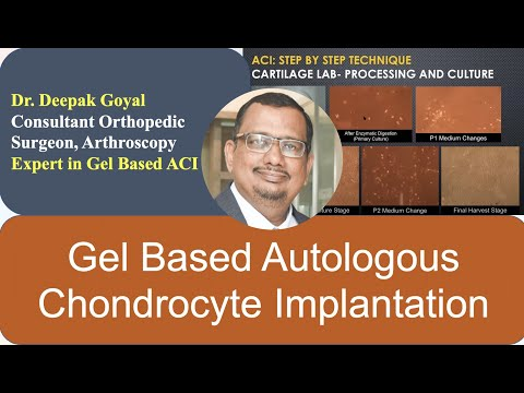 Gel Based Autologous Chondrocytes Implantation (ACI) by Deepak Goyal