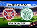 SLAUGHTERED BY SINCLAIR!!! | Hearts VS Celtic | Matchday Vlog Season 2 Episode 39