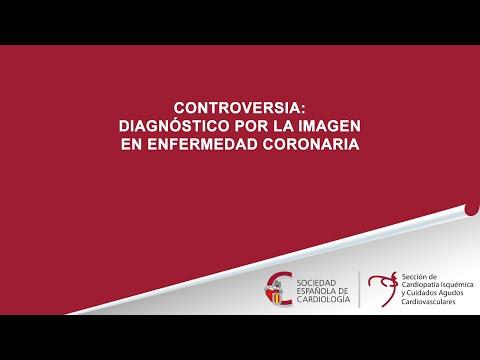 Actualización de las técnicas de imagen en el diagnóstico de enfermedad coronaria