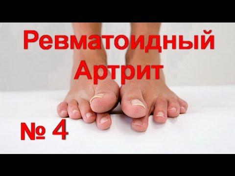 Ревматоидный артрит ! Деформация пальцев ног ! Как снять воспаление | #артритсуставов #edblack