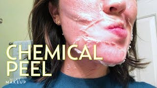 Video We Tried the Perfect Derma Chemical Peel! | The SASS with Susan and Sharzad MP3, 3GP, MP4, WEBM, AVI, FLV Januari 2018