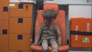 Zdjęcia chłopca po bombardowaniu w Syrii szokuje! Reporterka nie dała rady utrzymać emocji na wizji!