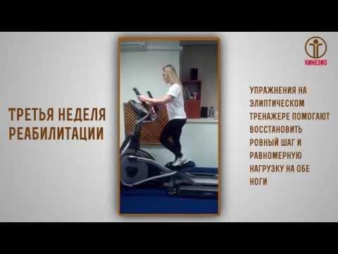 Марина - реабилитация после артроскопической операции на коленном суставе