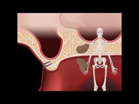 Атрофия альвеолярного гребня