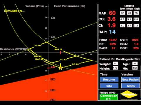 Cardiogenic Shock: Navigator™ Clinical Decision Support Simulation