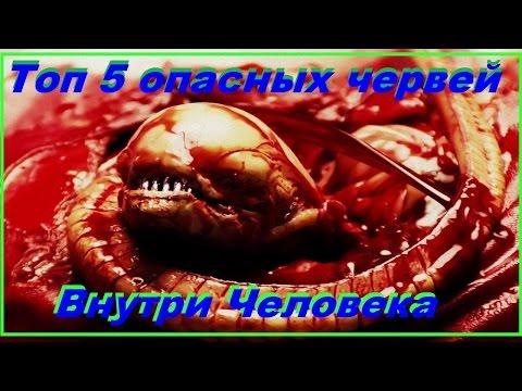 Топ 5 опасных червей которыми может заразиться человек