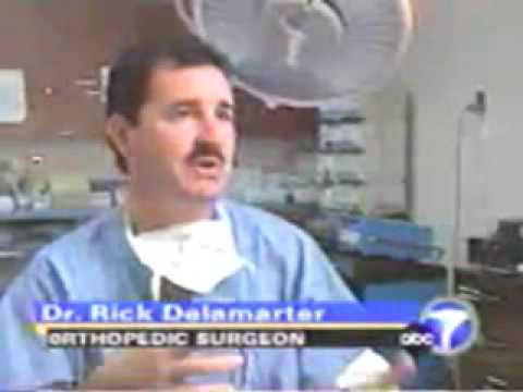 Disc Compression Surgery Kyphoplasty (News Clip Pre-2001)