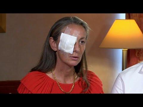Έχασε το μάτι της σε αγώνα γκολφ του Ryder Cup