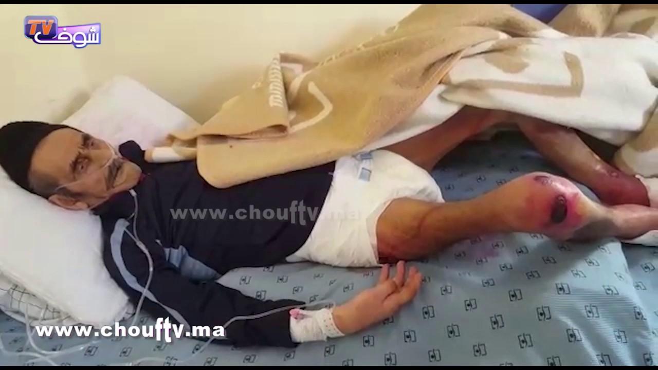 حالات مؤثرة لنزلاء خيرية تيط مليل..شوفو القمل و الدود و الوسخ بعد نقلهم إلى مستشفى سيدي عثمان | حالة خاصة