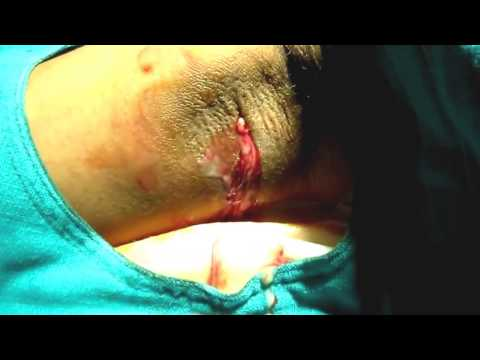 how to drain axillary abscess