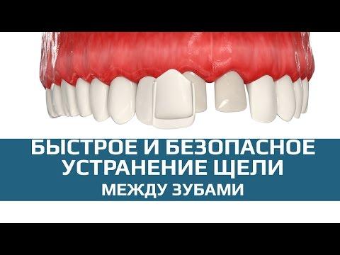 Скрытие щели между зубами винирами