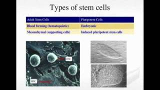 Stem Cell Therapy For Critical Limb Ischemia: First Choice Or Last Ditch?
