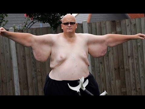 World's Fattest Man Loses 644 Lbs – Paul Mason