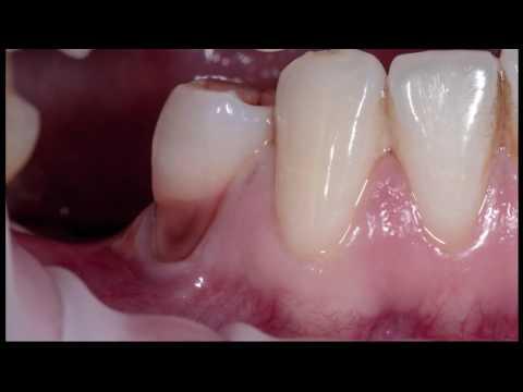 Практикум по пластике мягких тканей десны в области зубов и имплантатов. Часть 2