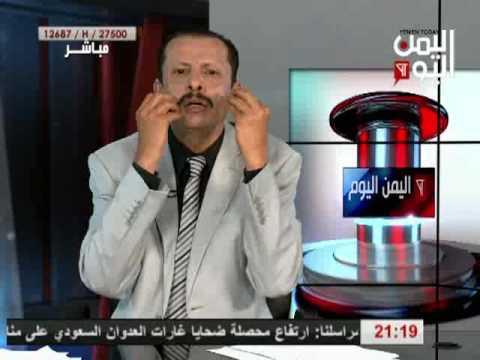 اليمن اليوم 31 8 2016