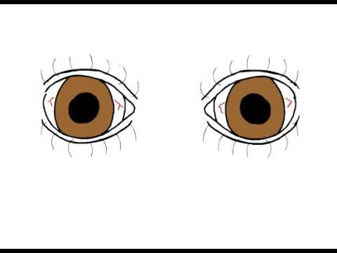 Myasthenia Gravis & Fatigability: Up-Gaze Test