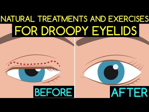 Natural Treatments And Exercises For Droopy Eyelids