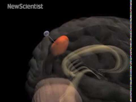 This Miniature Fishing Rod Catches And Kills Brain Cancer