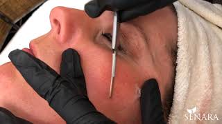 Video Dermaplaning Demonstration! MP3, 3GP, MP4, WEBM, AVI, FLV November 2018