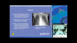 Immunologic Pulmonary Disorders (Hugo Escobar, MD)