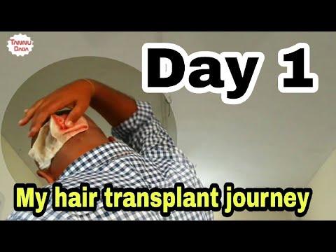 My hair transplant journey ||Day 1 #tannudada_A plasztikai sebészet kulisszatitkai. Heti legjobbak