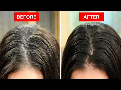 Turn White or Gray Hair to Black Naturally Using Only 2 Ingredients! (видео)