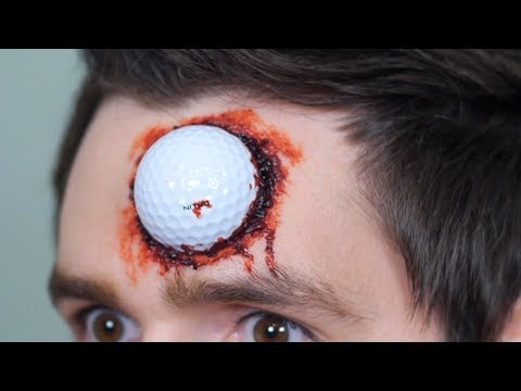GOLF BALL LODGED IN HEAD!