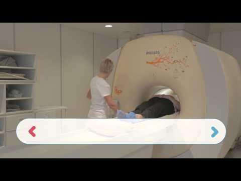 МРТ гиппокампа