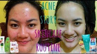 Video MY ACNE STORY + SKINCARE ROUTINE for ACNE SKIN   Cerita Lawan Jerawat + Skincare Jerawat (Indonesia) MP3, 3GP, MP4, WEBM, AVI, FLV Juni 2017