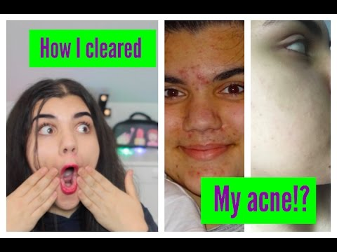 How i cleared my acne & my experience on lymecycline!
