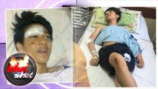 Video Terkuaknya Keberadaan Iqbal CJR Pasca Kecelakaan - Hot Shot 27 Juni 2015 MP3, 3GP, MP4, WEBM, AVI, FLV Mei 2018