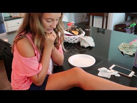 INFECTED LEG! SO GROSS! {PUS!}