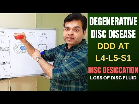 Degenerative Disc Disease (DDD) L4 L5, L5 S1-Disc Desiccation- Disc Degeneration Disease Treatment