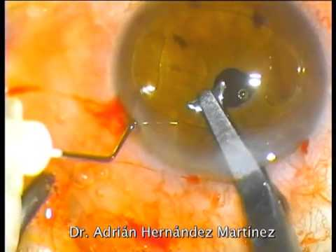 Artisan Aphakia IOL implantation