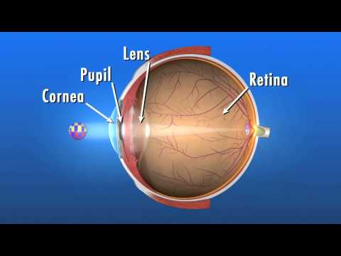 What is a Cataract and How Does It Affect my Eyes?