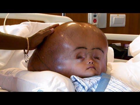 Video Son crâne mesure 94 cm de circonférence ! download in MP3, 3GP, MP4, WEBM, AVI, FLV January 2017