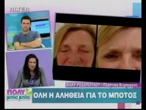 Όλη η αλήθεια για το botox