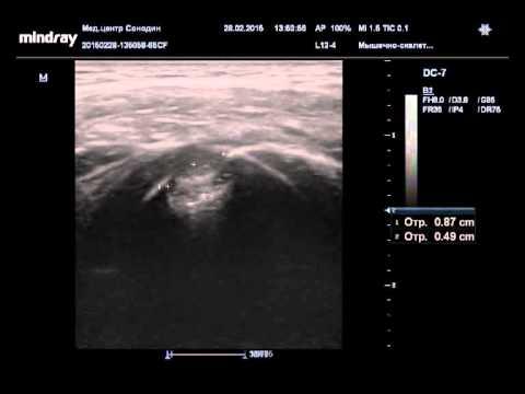 Патология головки плечевой кости- 2
