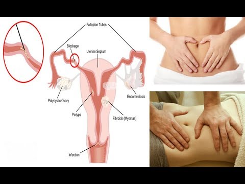 How to Unblock Your Fallopian Tubes Naturally - смотреть онлайн на