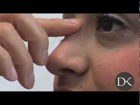 Primary Rhinoplasty Surgery Before and After
