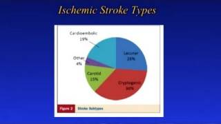 Screening For Stroke Risk