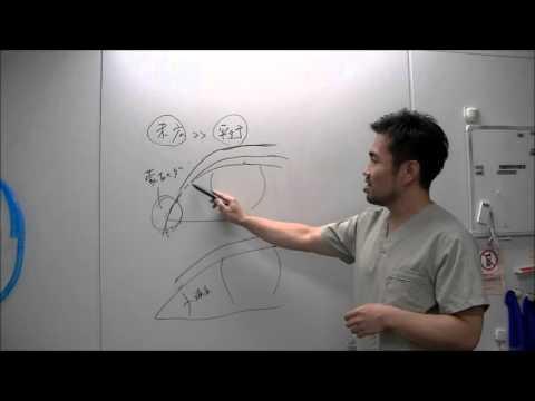 二重整形の基礎知識「末広型」と「平行型」の違いとは?