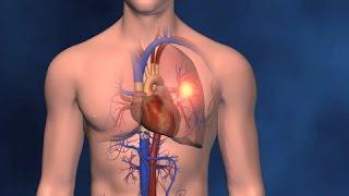 Animación Médica de 3D sobre DVT Embolism Pulmonar