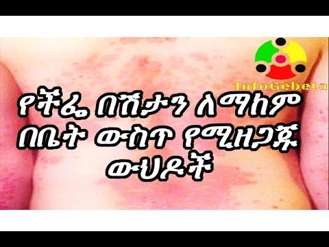 Ethiopia Home remedy for ECZEMA?